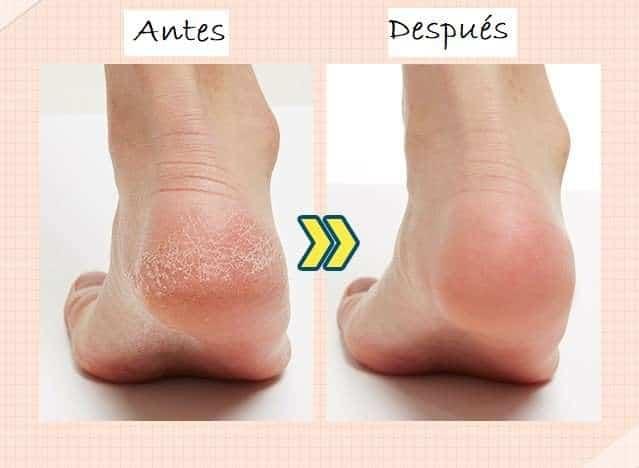A´pieu Soft Foot Peeling Socks